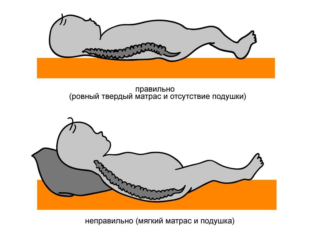 Профилактика раннего сколиоза