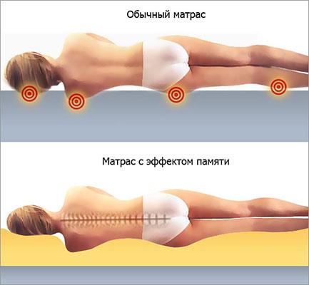 Ортопедическая поддержка позвоночника